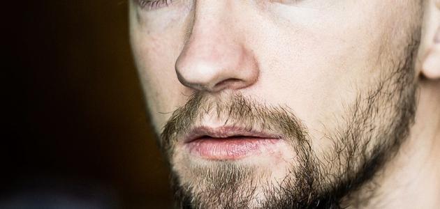 عدم ظهور شعر الذقن والوجه أسبابه وعلاجه - موضوع