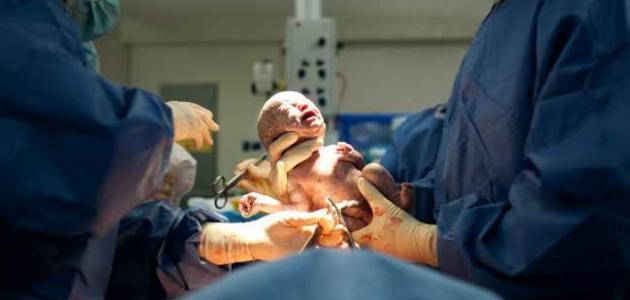 كيف أتخلص من خوف الولادة