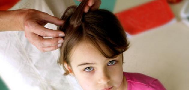 كيف أتخلص من حشرات الشعر