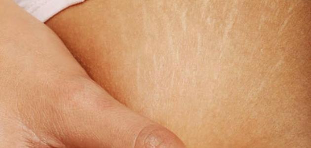 كيف أحمي جسمي من تشققات الحمل