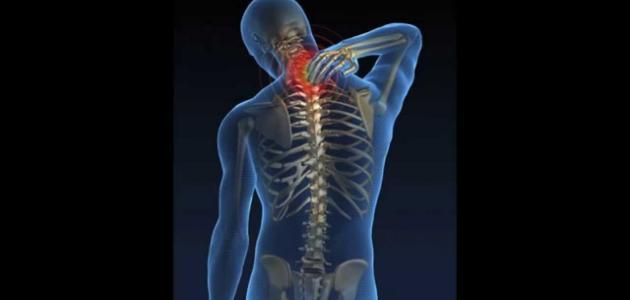الديسك وكيفية العلاج بدون جراحة