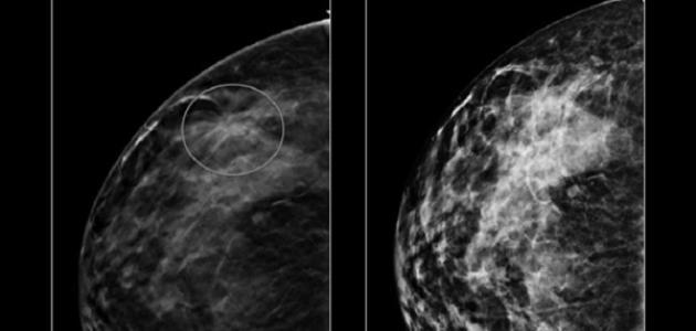 كيف اكتشف مرض سرطان الثدي