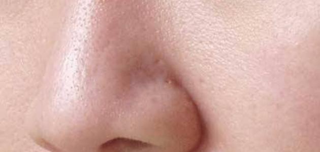 كيف أقفل مسامات وجهي
