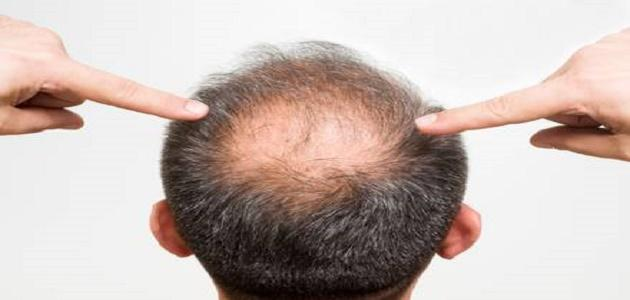 كيف توقف تساقط الشعر