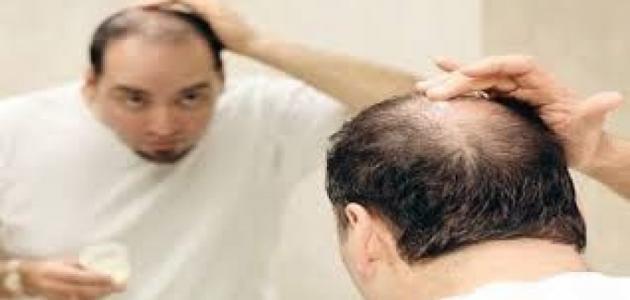 كيف تمنع سقوط الشعر