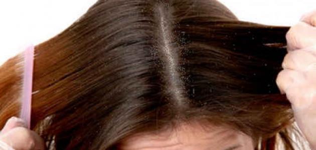 التخلص من القشرة وتساقط الشعر