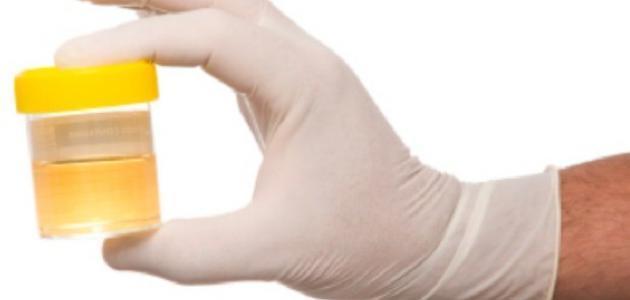 أعراض زلال البول عند الأطفال