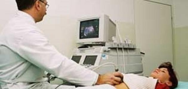 كيف يحدث الحمل خارج الرحم
