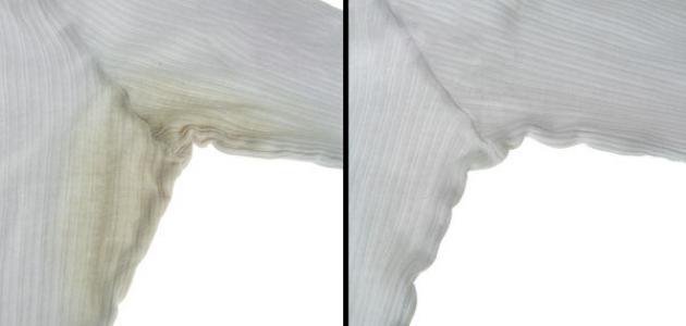 كيف أتخلص من البقع على الملابس البيضاء