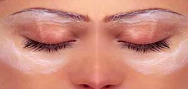 كيف أتخلص من البقع السوداء تحت العين