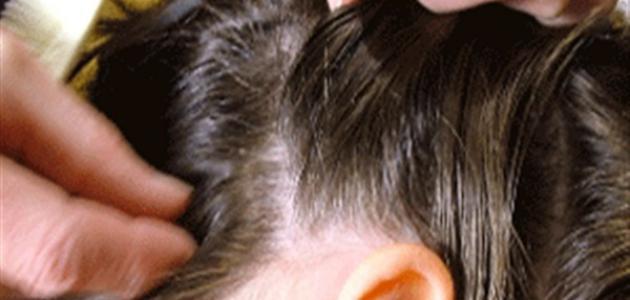 كيف نقضي على قمل الشعر