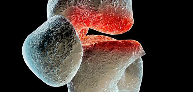 كيف نعالج مرض هشاشة العظام