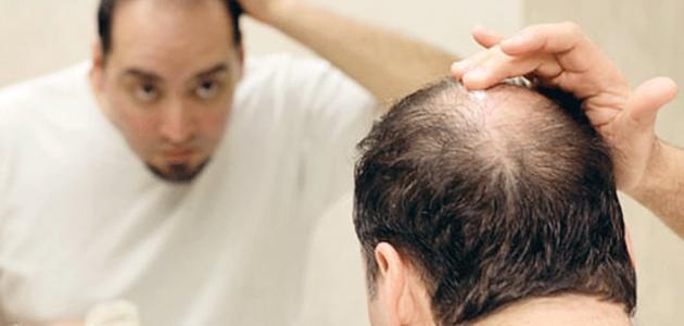 كيف توقف تساقط الشعر عند الرجال