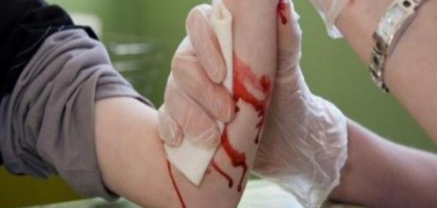 كيف توقف نزيف الجرح