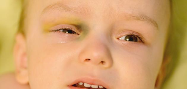 كيف تعالج كدمات الوجه