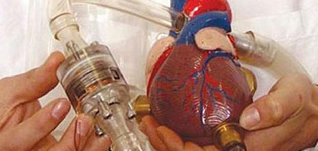 كيف تتم عملية زراعة القلب