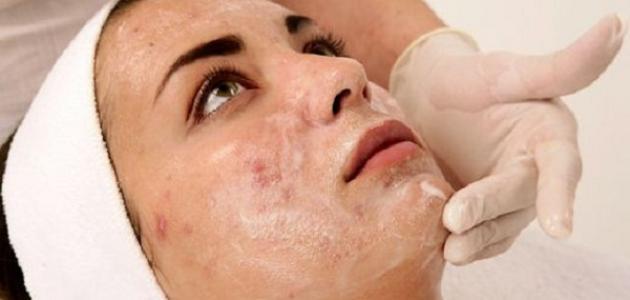 كيفية علاج بقع الوجه