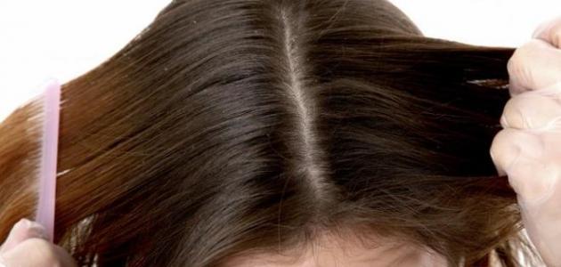 كيف أخفي فراغات شعري