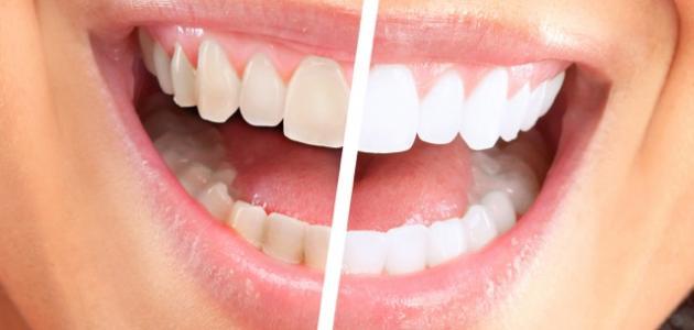 كيفية إزالة الجير من الأسنان