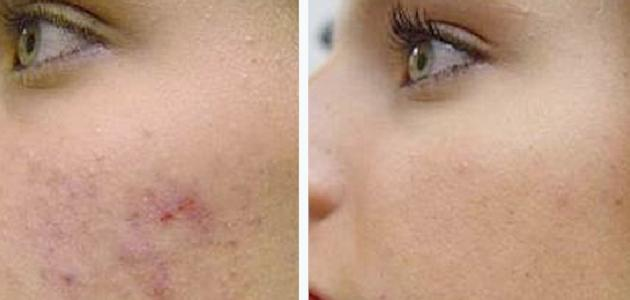 طريقة لإزالة الحفر من الوجه