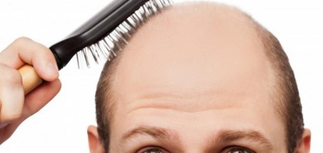 كيف تعالج تساقط الشعر عند الرجال