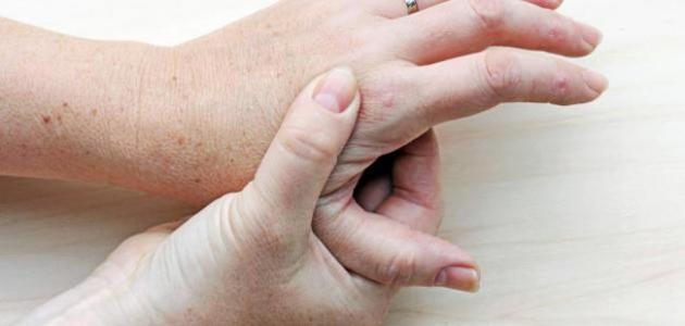 أعراض مرض النقرس
