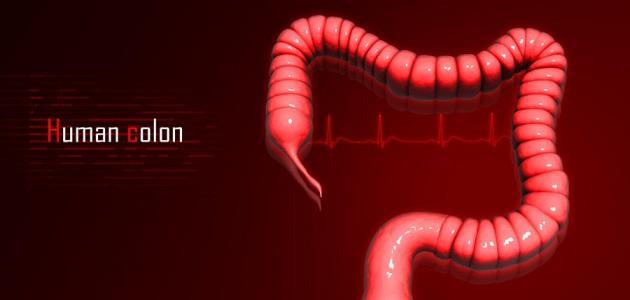 أعراض سرطان القولون