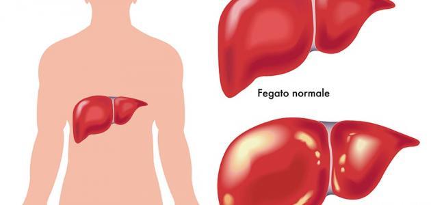 أعراض مرض الكبد %D8%A3%D8%B9%D8%B1%D