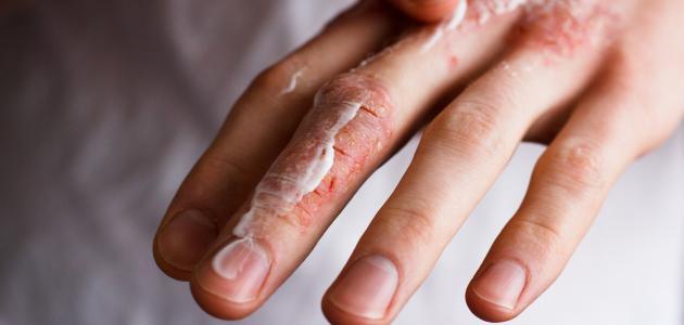 أنواع حساسية الجلد