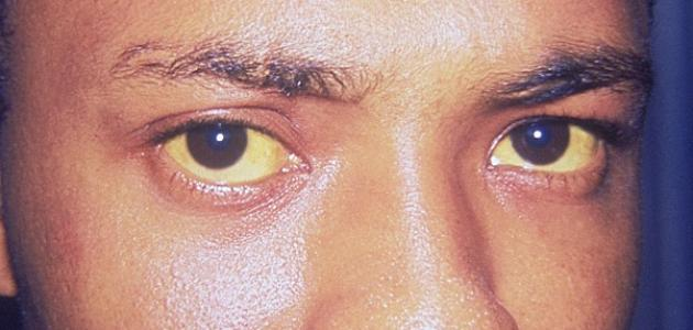 أعراض مرض التهاب الكبد الوبائي
