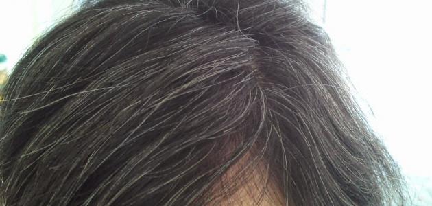 علاج شيب الشعر