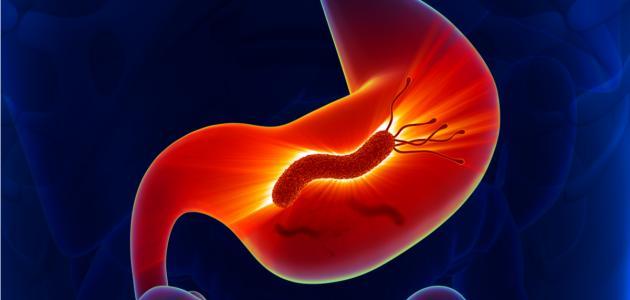 أعراض جرثومة المعدة بالتفصيل