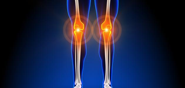 أسباب آلام العظام