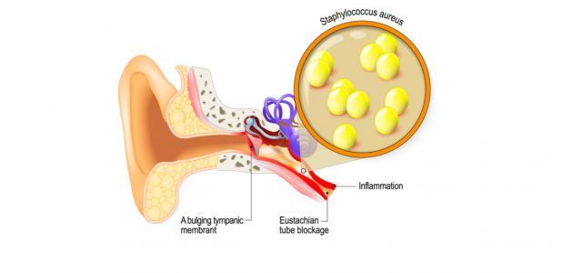 أسباب التهاب الأذن الوسطى