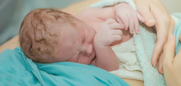 أسباب الولادة القيصرية