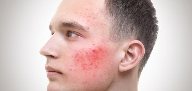 علاج آثار حب الشباب للبشرة الدهنية