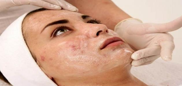 علاج بثور الوجه