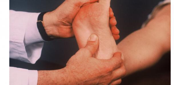أسباب ألم باطن القدم