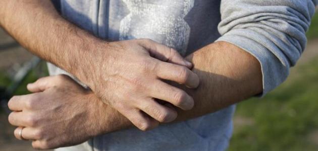 علاج الحساسية الجلدية