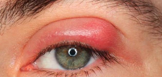 أسباب ألم العين