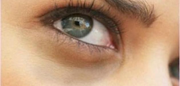 إزالة السواد حول العين