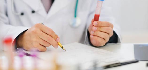 تحليل الهرمونات