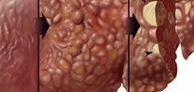 أسباب التهاب الكبد