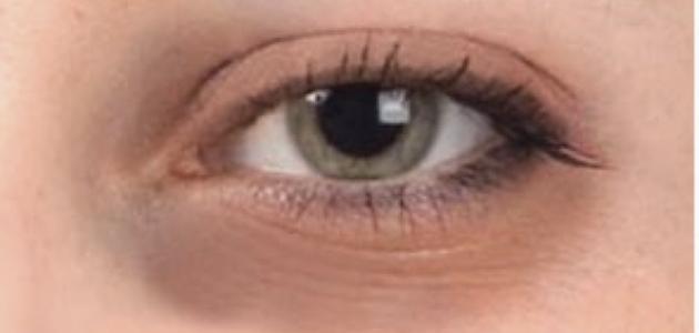علاج للسواد تحت العين
