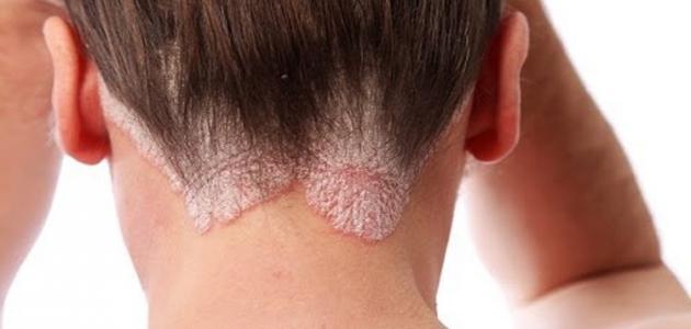 أنواع أمراض الجلد