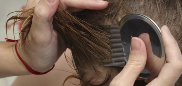 علاج قمل الشعر نهائياً