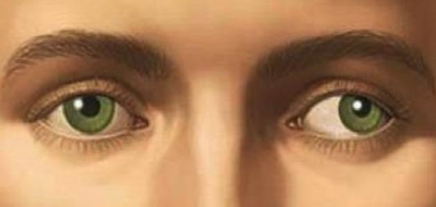 أسباب انحراف العين