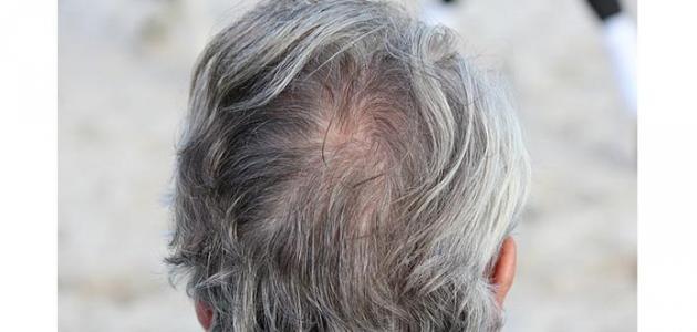 علاج شيب الشعر نهائياً