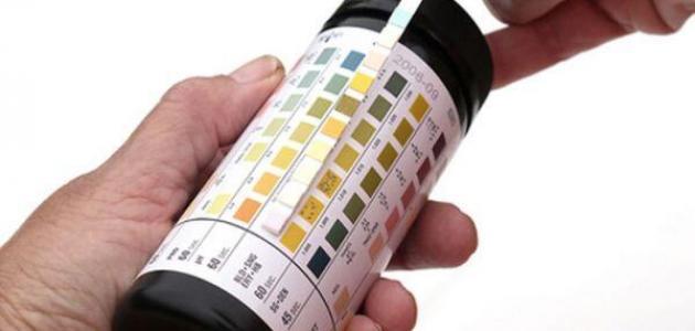 محتويات تحليل البول Urine analysis · تحاليل وظائف الكلى Renal function tests
