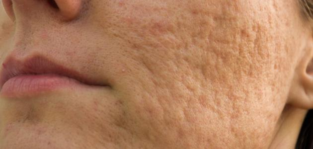 علاج حفر الوجه طبيعياً